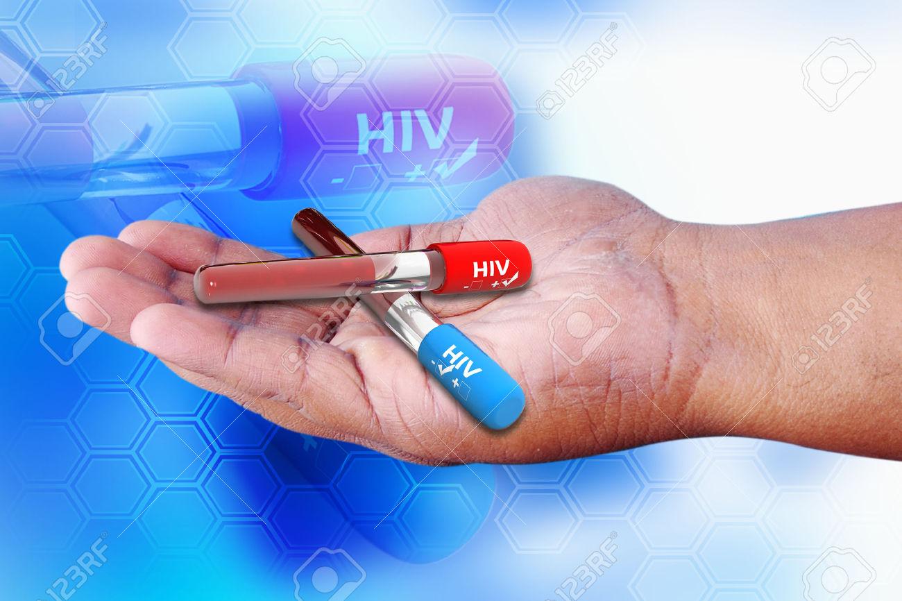 Годинава 28 инфицирани со ХИВ вирус во Македонија